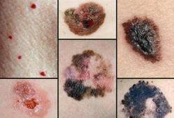 меланома — злокачественная опухоль кожи