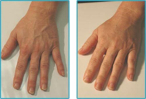 фото до и после парафинотерапии рук