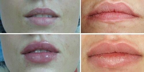 фото до и после применения Реплери
