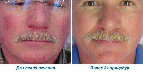 Фото до и после удаления сосудов методом электрокоагуляции