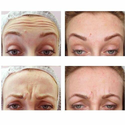 Фото до и после применения Вискодерма
