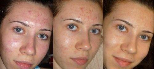 солярий о т угрей фото до и после
