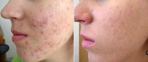 фото до и после Дарсонвализации лица 3