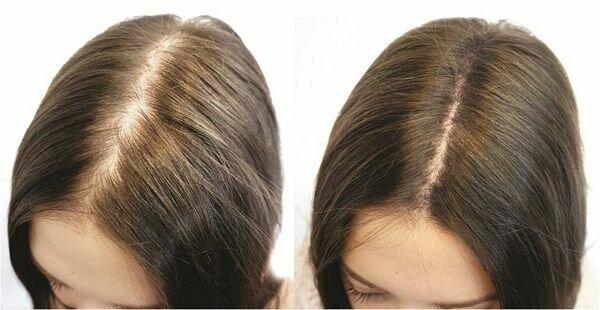 фото до и после дарсонвализации волос