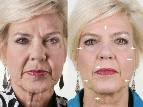 и после миостимуляции лица