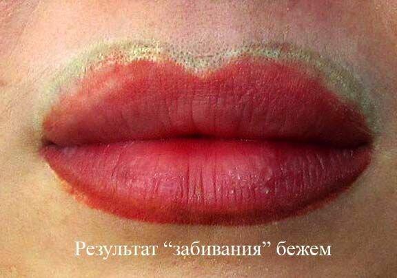 желтоватый оттенок  на губах