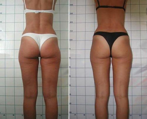 фото до и после миостимуляции тела 2