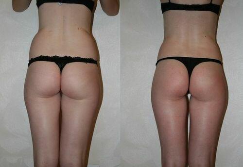 фото до и после миостимуляции тела 3