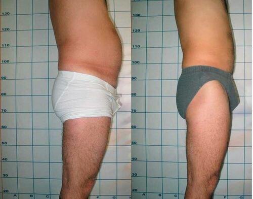 фото до и после миостимуляции тела 4