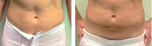 фото до и после миостимуляции тела 5