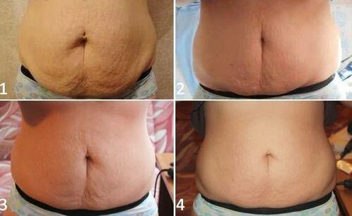 фото до и после миостимуляции тела 6