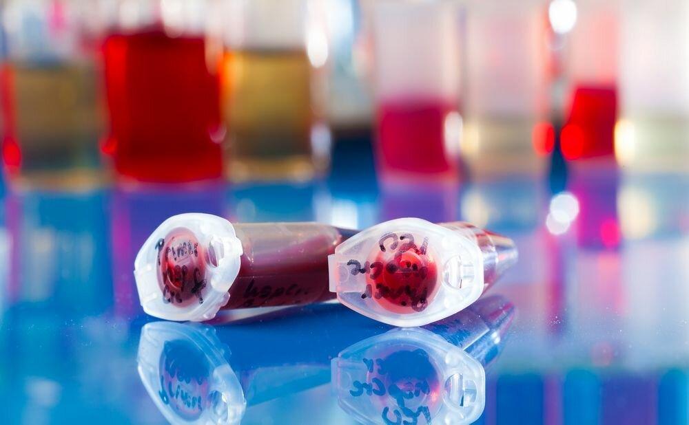 стволовые клетки пуповины