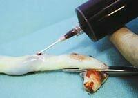 получение стволовых клеток из пуповинной крови