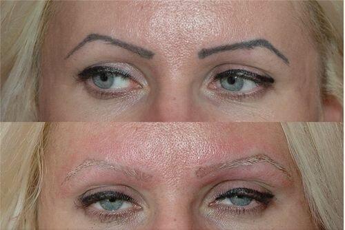 фото до и после лазерного удаления татуажа 6