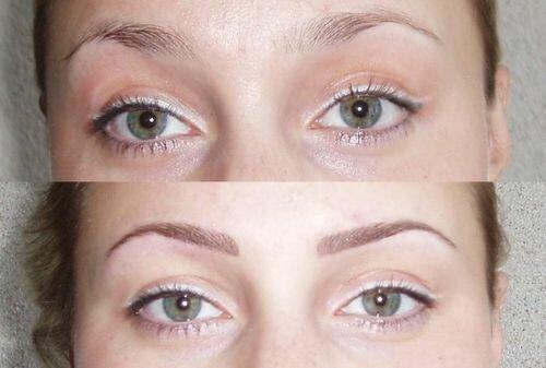 фото до и после волоскового татуажа бровей