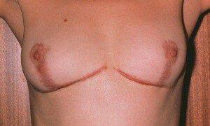 Швы после маммопластики