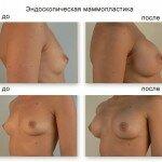 маммопластика стоимость операции