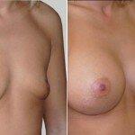 сколько болит грудь после маммопластики
