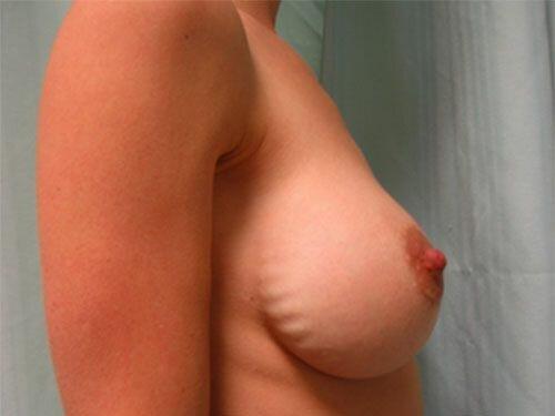 Сморщивание импланта