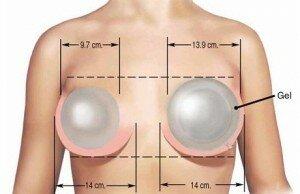 уход за грудью после маммопластики