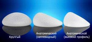 виды имплантов для маммопластики