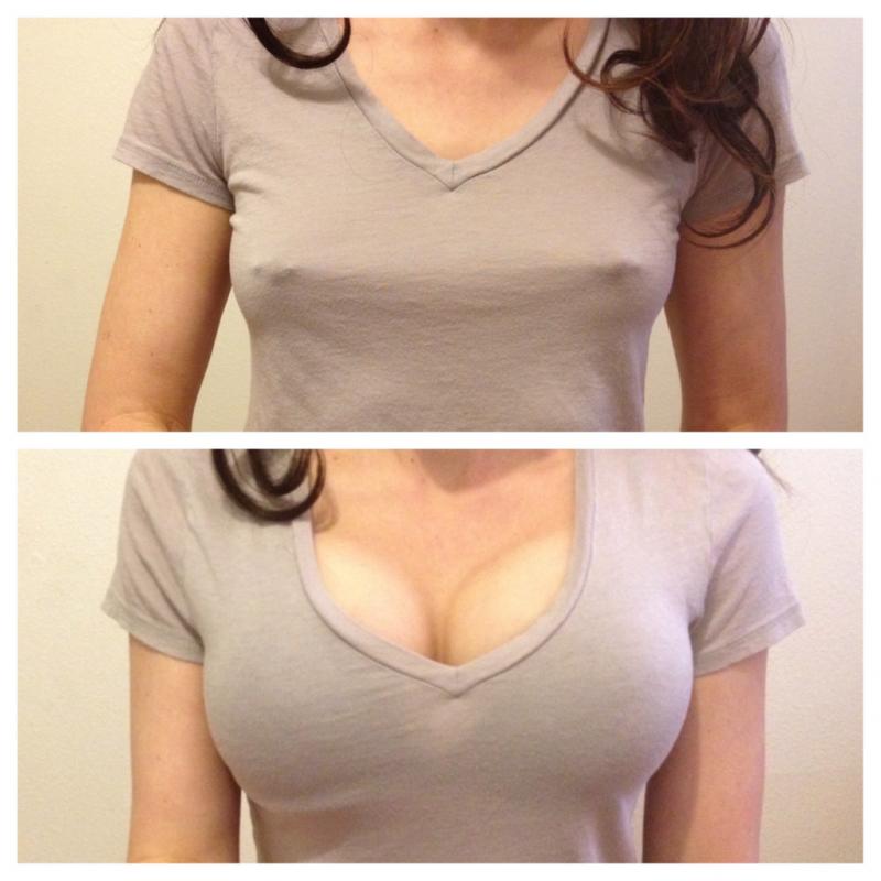 Зрительное увеличение груди