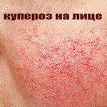 мезотерапия при куперозе