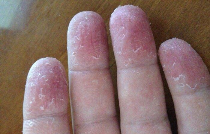 морщины на подушечках пальцев